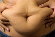 Paunch. Hands squeezing the abdominal fat of obese men Royalty Free Stock Image