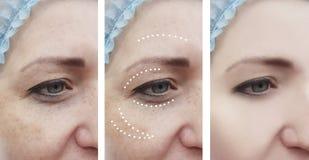 Paziente adulto facciale femminile delle grinze prima dopo dermatologia di procedure del collage fotografia stock