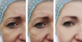 Paziente adulto facciale femminile delle grinze prima e dopo dermatologia di procedure del collage di effetto immagine stock
