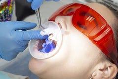 Paziente della ragazza alla ricezione al trattamento del dentista del dente cariato la ragazza si trova sulla sedia dentaria con  immagini stock libere da diritti
