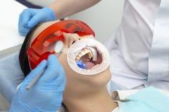 Paziente della ragazza alla ricezione al trattamento del dentista del dente cariato la ragazza si trova sulla sedia dentaria con  immagine stock