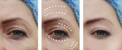 Paziente facciale femminile delle grinze prima e dopo dermatologia di procedure del collage di effetto fotografie stock libere da diritti
