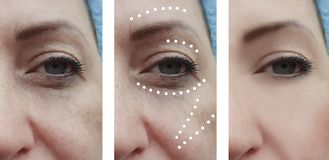 Paziente facciale femminile delle grinze prima e dopo le procedure del collage di effetto fotografia stock libera da diritti