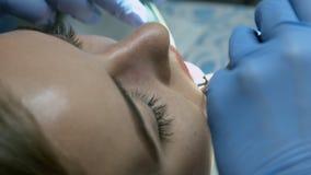 Paziente per il controllo medico preventivo al dentista con la sonda e lo specchio archivi video