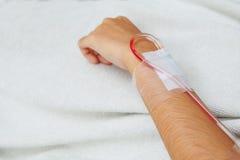 Pazienti che ottengono endovenosi per chemioterapia fotografie stock libere da diritti