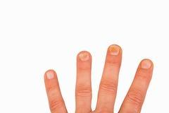 Paznokcie z gwoździa grzybem Obrazy Stock