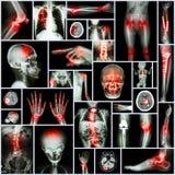 Peça do raio X da coleção da operação humana, ortopédica, doença múltipla (fratura, gota, artrite reumatoide, joelho da osteodist fotos de stock royalty free