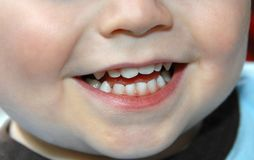 Baby Teeth on Little Boy royalty free stock image