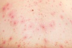 Peau avec la varicelle Photographie stock libre de droits