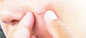 Peau d'acné Image stock