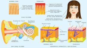 Peau d'Eczema Photographie stock