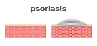 Peau de psoriasis Photo libre de droits