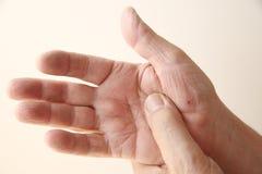 Peau guérissant en main de l'homme Photographie stock