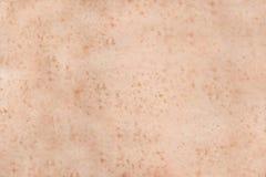 Peau humaine couverte de taches de rousseur Photo libre de droits