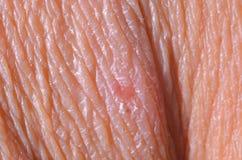 Peau sèche Photo libre de droits