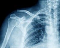 Pecho de la imagen de la radiografía Foto de archivo libre de regalías