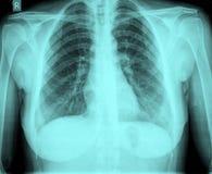Pecho de la radiografía foto de archivo libre de regalías