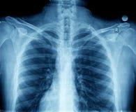 Pecho de la radiografía fotos de archivo
