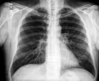 Pecho de la radiografía imagen de archivo