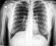 Pecho de la radiografía Fotografía de archivo