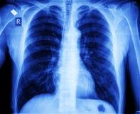 Pecho de la radiografía Fotografía de archivo libre de regalías