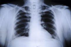 Pecho del ser humano de la radiografía Imagen de archivo libre de regalías