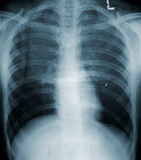 Pecho del ser humano de la radiografía Imagen de archivo