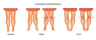 Pediatrische orthopedie valgus en varus stock illustratie