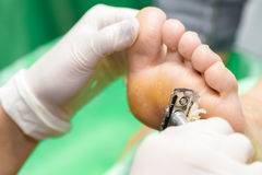 Pedicure  procedure in the beauty salon.  emover calluses on the Stock Photography