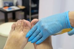 Pedicure process. Terribly scary nails. Foot fungus stock images