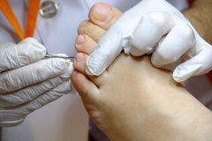 Pedicure specialist works with the patient Stock Photo