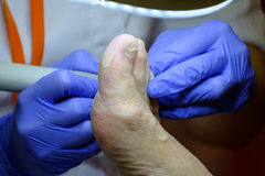 Pedicure specialist works with the patient Royalty Free Stock Image