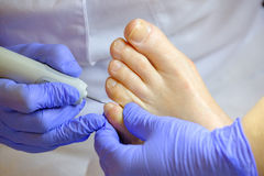 Pedicure specialist works with the patient Stock Image