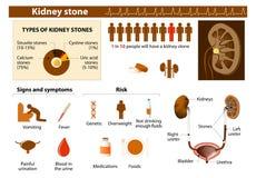 Pedra de rim ilustração royalty free