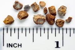 Pedras de rim fotografia de stock