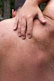 Peeling Sunburned Back. Close up detail of a very bad sunburn showing the peeling blistered skin of a mans back.  Shallow depth of field Stock Photo