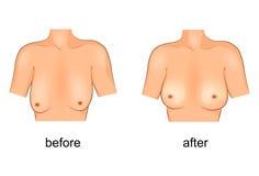 Peito da cirurgia plástica antes e depois ilustração royalty free