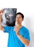 Película de radiografía Fotos de archivo libres de regalías
