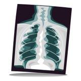 Película de radiografía libre illustration