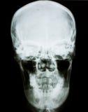 Película de radiografía de la pista humana Imagenes de archivo