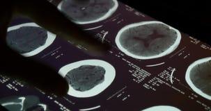 película de radiografía del tacto PET-CT del doctor 4k en el software del app del ipad de la pantalla táctil para el análisis metrajes