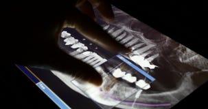 película de radiografía del tacto PET-CT del doctor 4k en el software del app del ipad de la pantalla táctil para el análisis almacen de video