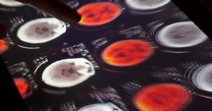 película de radiografía del tacto PET-CT del doctor 4k en el software del app del ipad de la pantalla táctil para el análisis almacen de metraje de vídeo