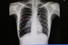 película del pecho de un paciente con neumotórax grande imágenes de archivo libres de regalías