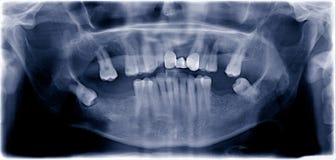 Película dental fotos de stock royalty free