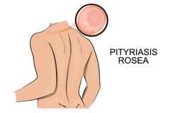 A pele afetada pelo rosa da tinha rosea do pityriasis ilustração royalty free