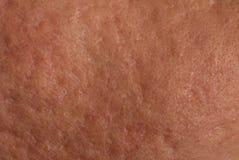 Pele com cicatrizes da acne fotos de stock