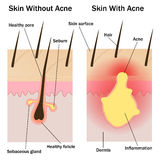 Pele com e sem a acne Foto de Stock Royalty Free