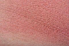 Pele da queimadura Fotografia de Stock