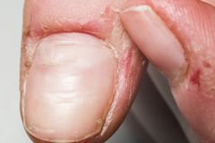 Pele danificada no dedo, rebarbas, macro fotos de stock royalty free